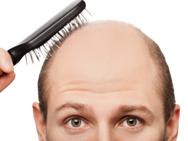 Are You Losing Hair? Eat These Types of Food to End Hair Loss for Good!